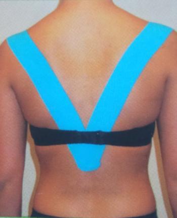 Orthopedisch tapen ook wel kinesiotaping genoemd